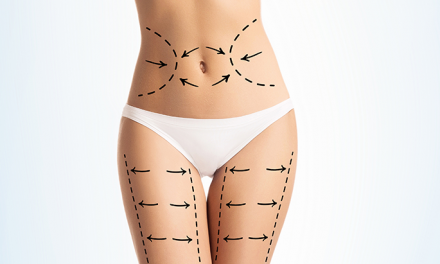Cosmetic surgery stats: number of surgeries remains stable amid calls for greater regulation of quick fix solutions