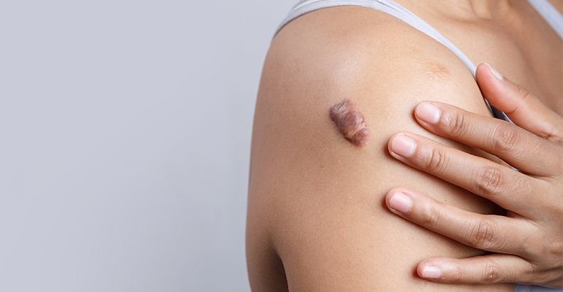 Soliton to Initiate POC Clinical Trials to Treat Fibrotic Scars Using Acoustic Shockwaves