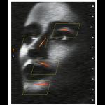 Use of Duplex Ultrasound in Facial Aesthetics