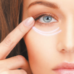 DUAL PLANE LOWER BLEPHAROPLASTY WITH THE 'EYELID LIFT'