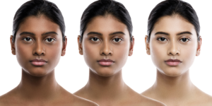 Skin pigmentation mechanism confers major protection against UV-related cancers