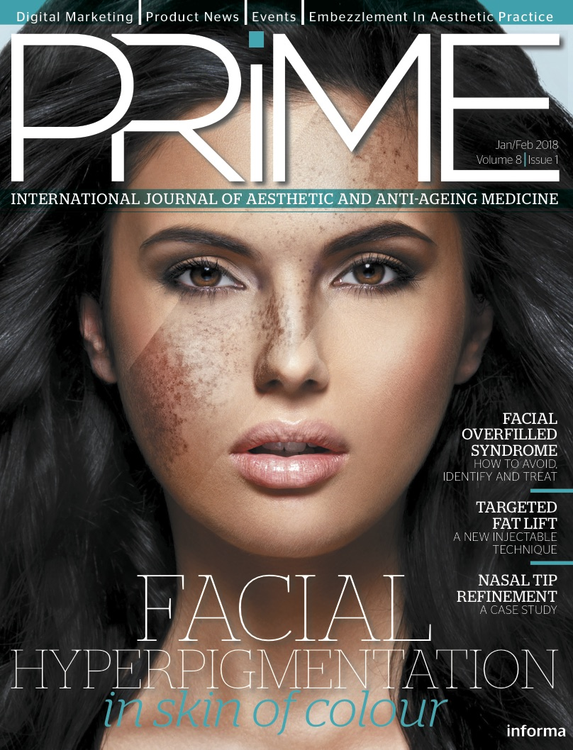 PRIME International