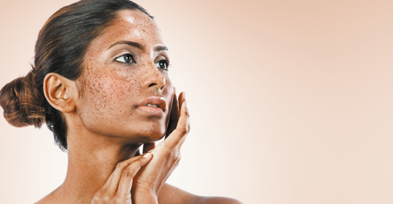 Facial hyperpigmentation in skin of colour