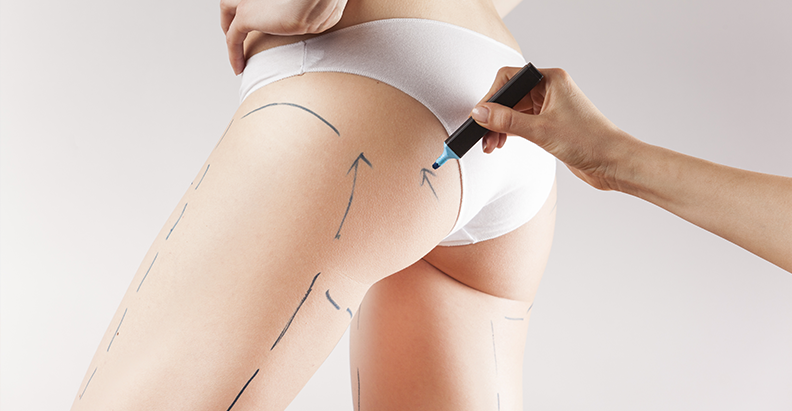Revolutionary brand-new technology is offering a very real solution for cellulite