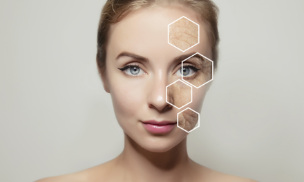 Topical Nitric Oxide Serum Improves Aesthetics for Aging Skin, Acne, Scars, and Wound Care