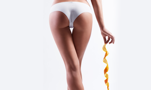 Cellulex® The First Ever Subcutaneous Injectable Indicated For Buttock Cellulite Correction