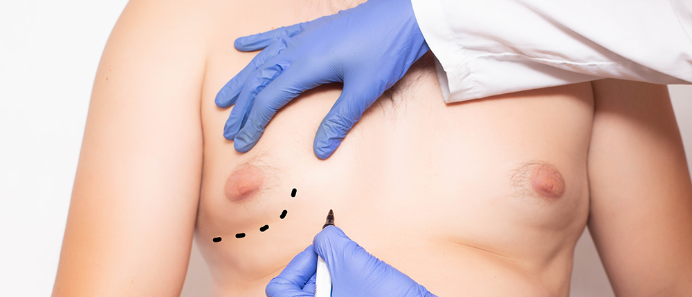 'High-Definition Liposculpture' Offers New Option for Men With Gynecomastia