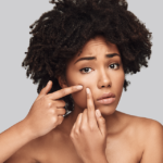 People with darker skin disproportionately suffer from acne's psychological impacts