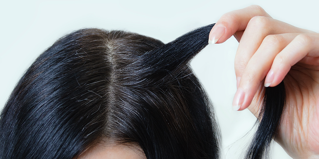 Stress can turn hair gray – and it's reversible, researchers find