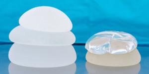 Researchers analyze how breast implant surfaces influence immune response