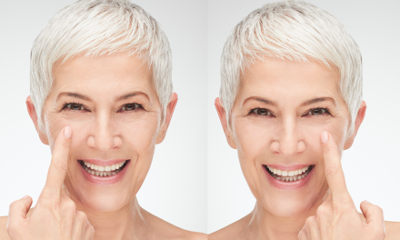 New, objective approach can help estimate the age after facelift surgery
