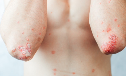 New evidence-based resources to guide treatment of plaque psoriasis