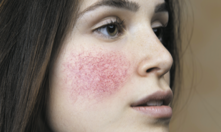 Rosacea and its systemic co-morbidities and associations